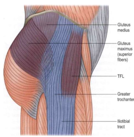 Hip Bursitis? . . . It may not be what you think.